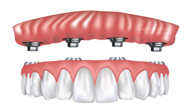 supported-denture2